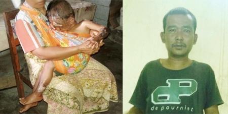 Ahmad Anugerah Saputra dipangku ibunya (kiri) korban luka bakar dan Asnawi Lubis (kanan) penjual minyak tanah
